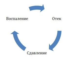 Порочный круг развития воспаления