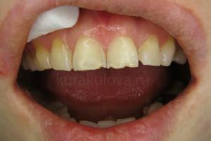 Оля_зубы_IMG_0525 (2)