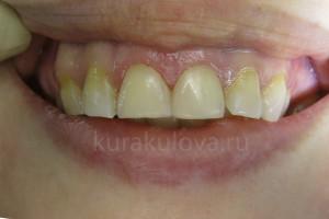Оля_зубы_IMG_0528 (2)