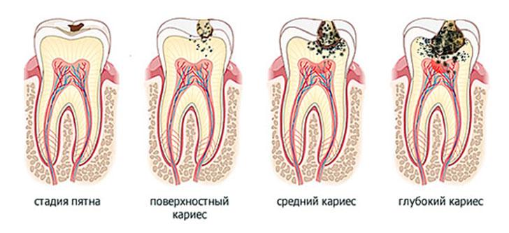 Средний кариес зуба: симптомы и лечение