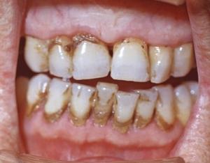 Пародонтит. Причина зубной камень.