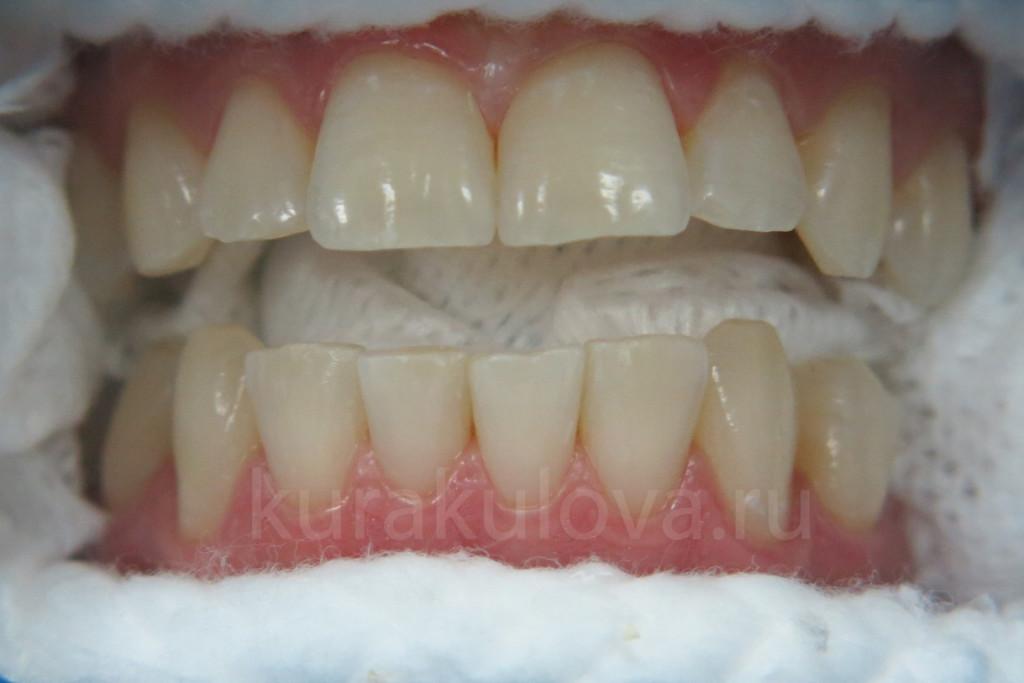 Реставрация зубов в саратове