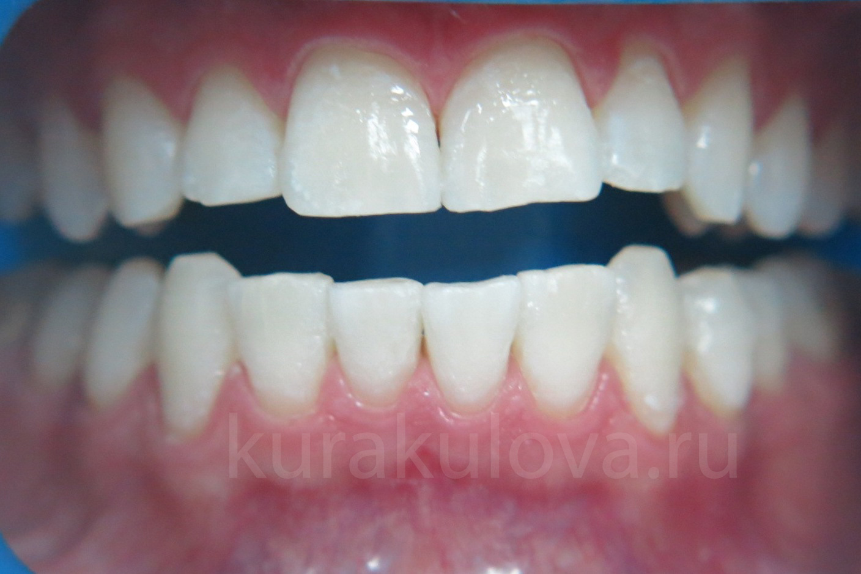 отбеливание зубов гидроперитом в таблетках