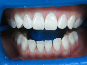 отбелиование_зубов_2_IMG_1599